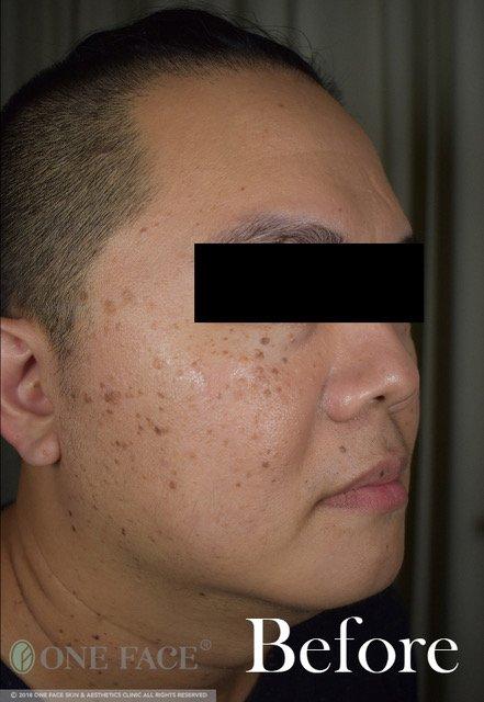 Pigmentation Bumps