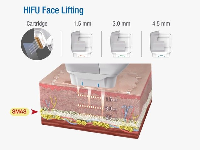 HIFU Face Lifting Diagram