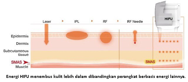 HIFU diagram
