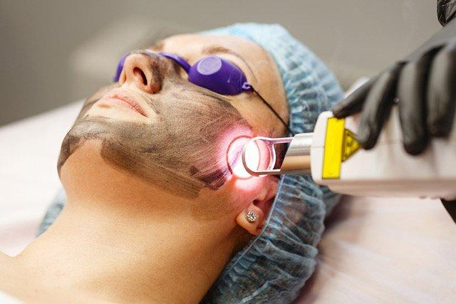 Meluruskan Mitos – Laser mengatasi semua pigmentasi