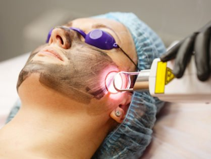 Myth Debunked – Lasers cure all pigmentations