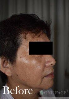 Solar Lentigo and Uneven Skin Tone