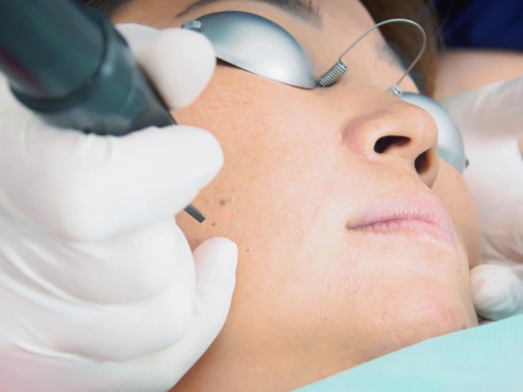 Asian woman patient on laser procedure skin resurfacing