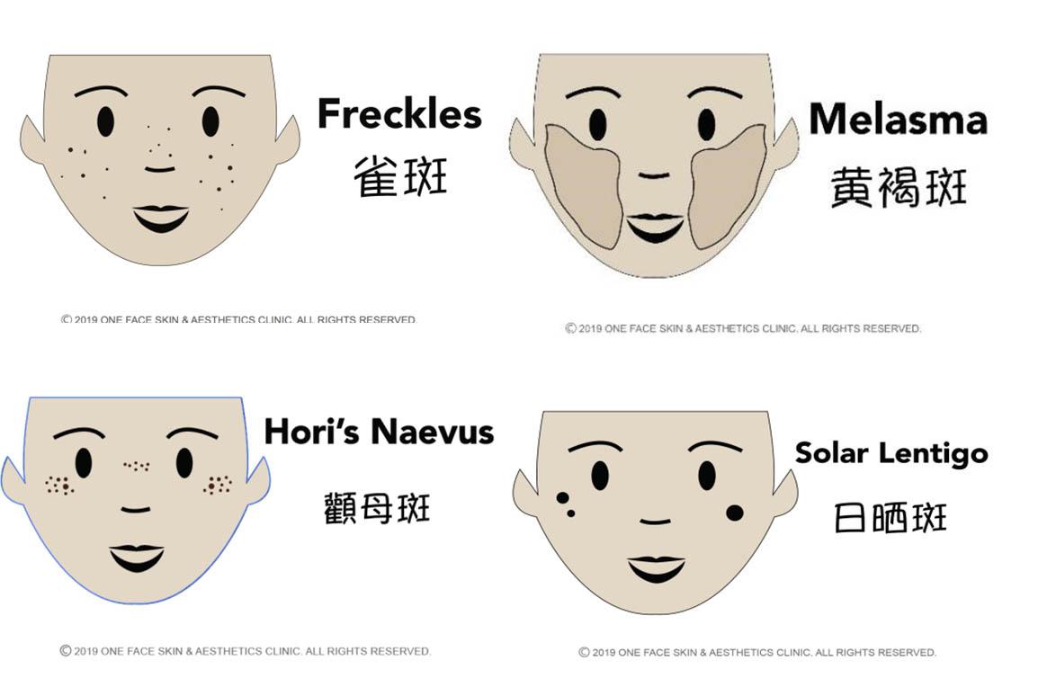 Pigmentation types