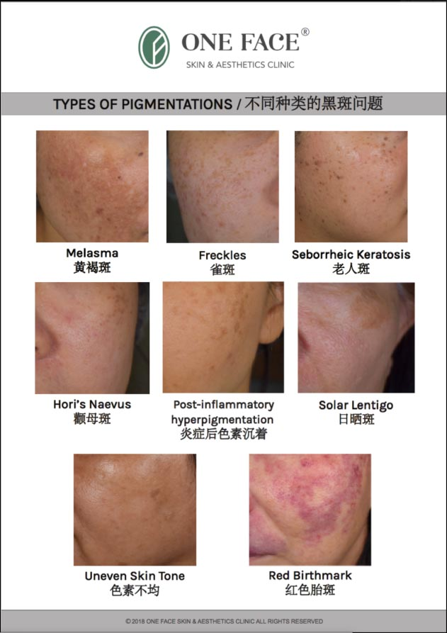 one face clinic types pigmentation