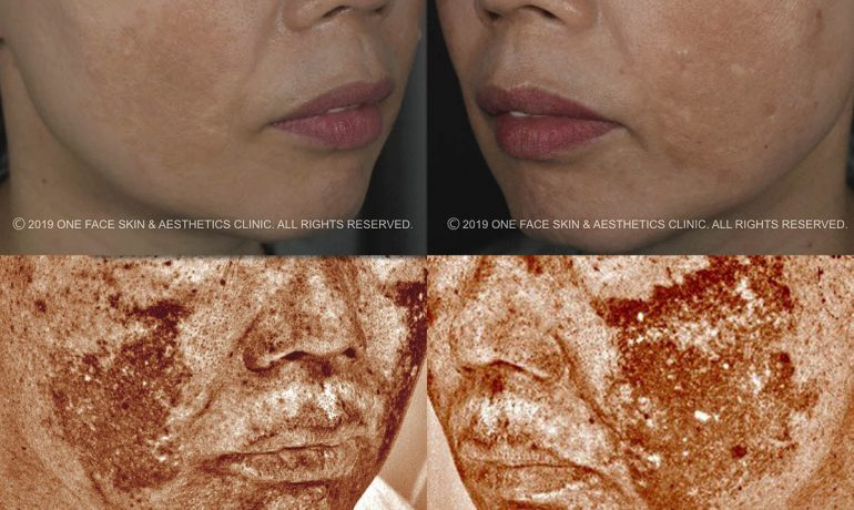 Melasma Treatment Singapore - Dr. David Ng C. H. shares how he tackled 3 tough cases