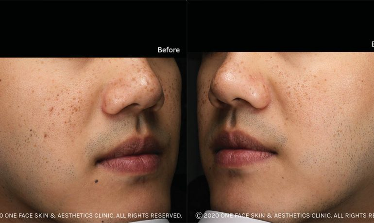 Freckles Removal Treatment by Laser - A Patient's Experience in Singapore