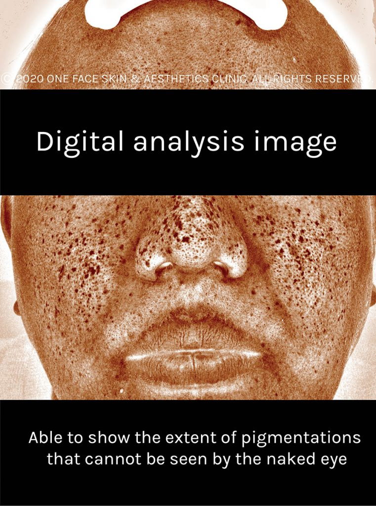 Digital analysis image