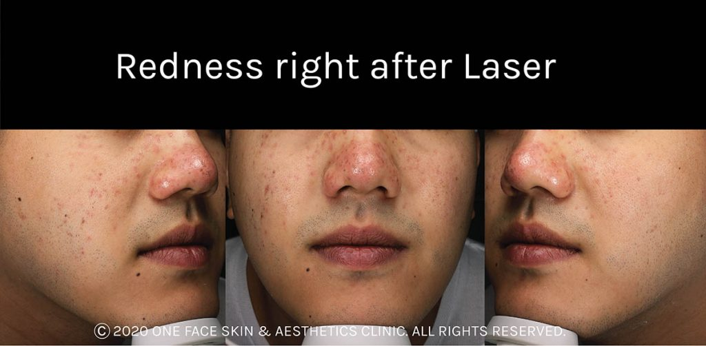 Redness right after laser