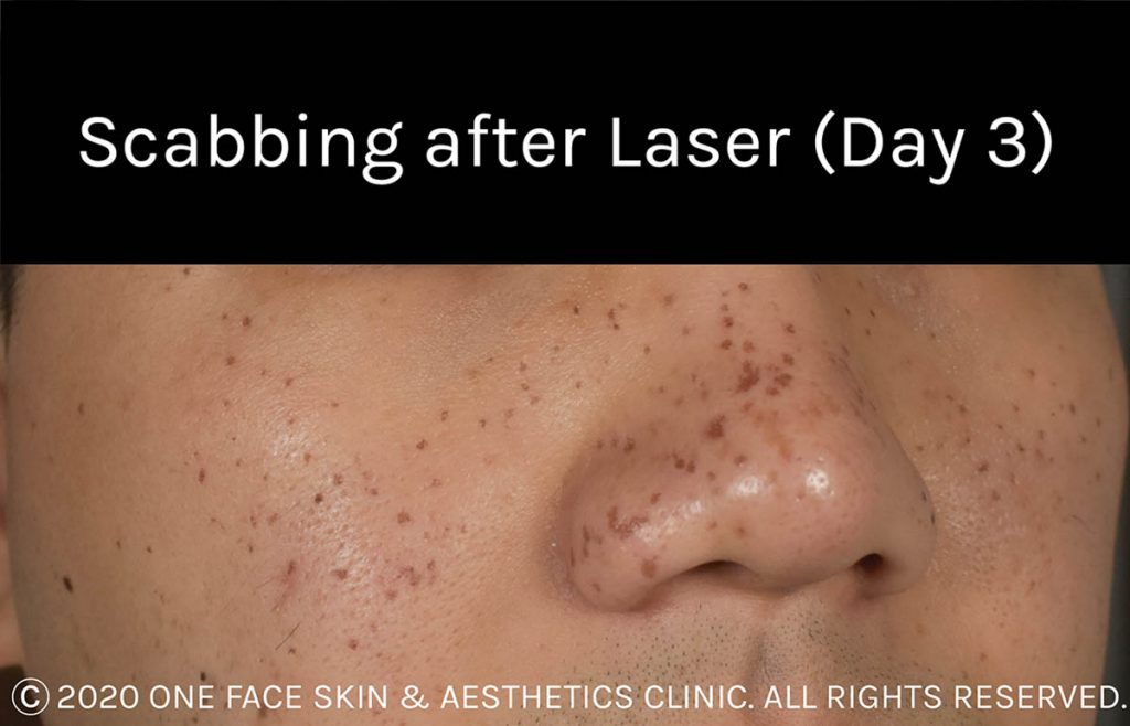 Scabbing after laser (Day 3)
