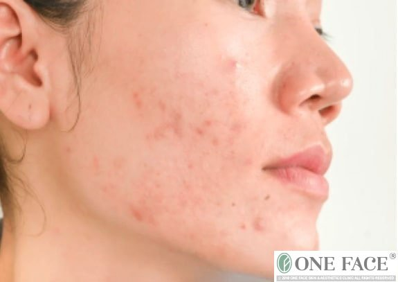 The battle against adult hormonal acne: My story