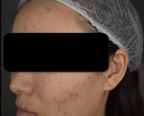 """My """"Acne War"""": How a doctor treated me swiftly within 3 months in Singapore"""