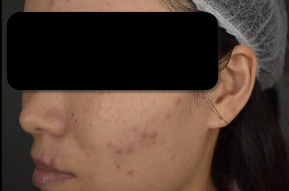 "My ""Acne War"": How a doctor treated me swiftly within 3 months in Singapore"