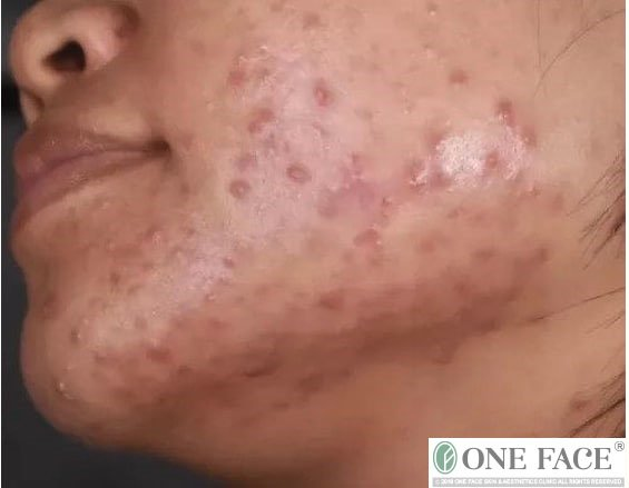 The attack of adult acne: do I need to go for acne treatments in Singapore in my 30s-40s?