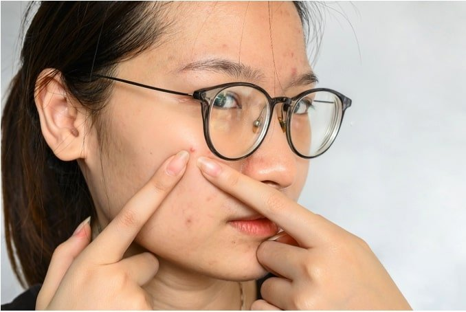 Squeezing your acne or pimples can cause permanent damage to your skin – don't do it by yourself!
