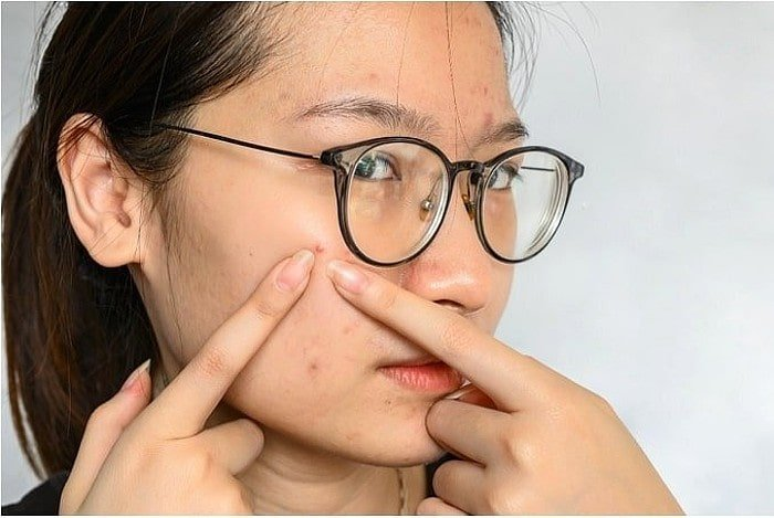 Lady squeezing pimple