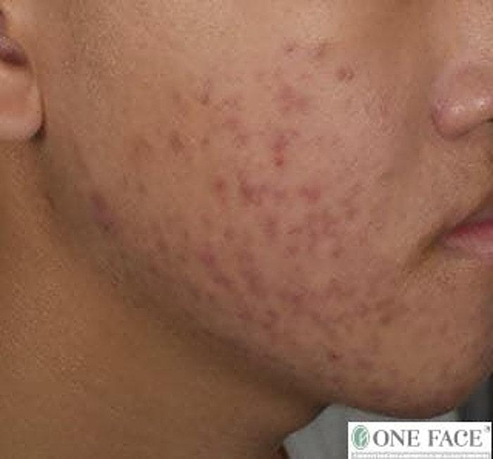 Side cheek acne