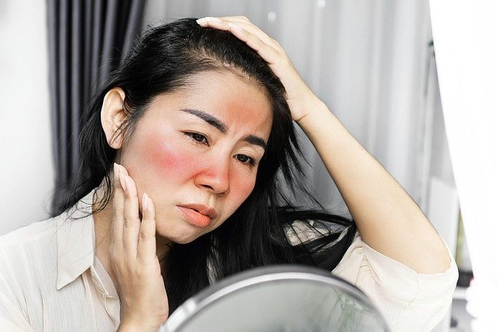 Lady suffering from redness around face
