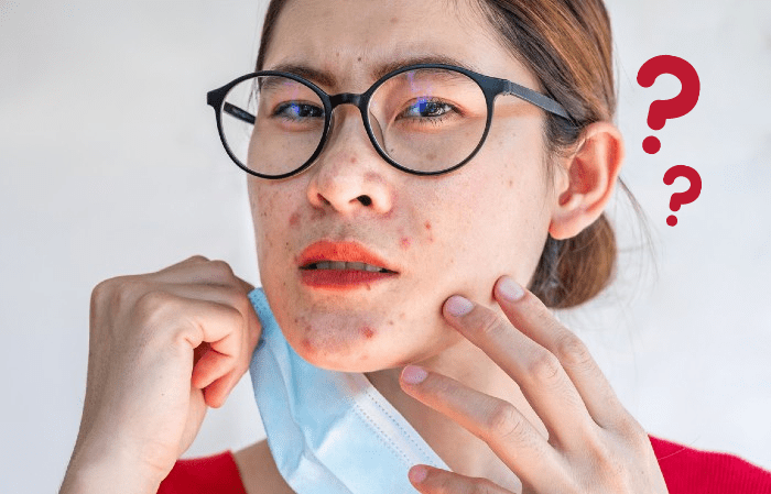 Acne: 10 Most Common Myths in Singapore — by Dr. David Ng CH